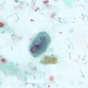 Giardia life cycle cdc - Giardia duodenalis life cycle