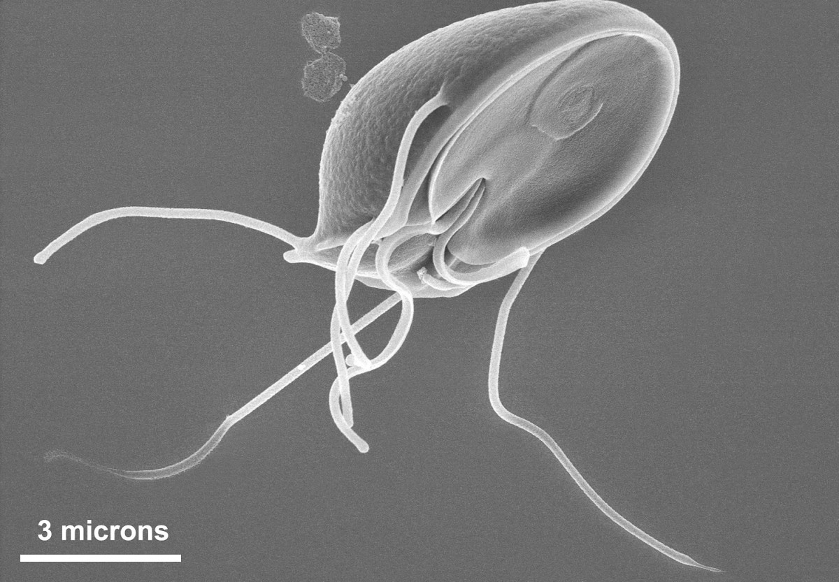 kako nastaju paraziták a szervezetben gyomorrák család
