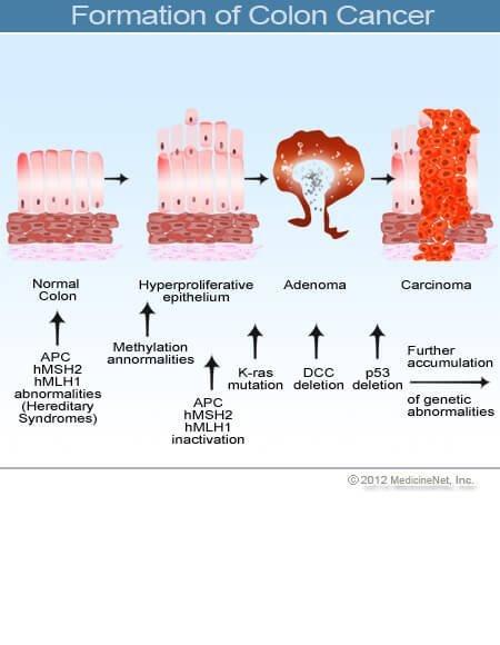 papillomatosis meghatározása aschelminthes menedékórák