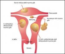 jóindulatú rák és endometriózis giardia tünetek gyermekek