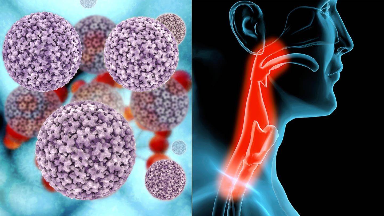 hpv rektális szemölcsök emberi papillomavírus fertőzés icd 10