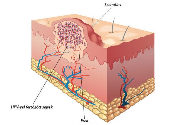 genitális szemölcsök a hüvelyben, mint eltávolítva rák, amely rák