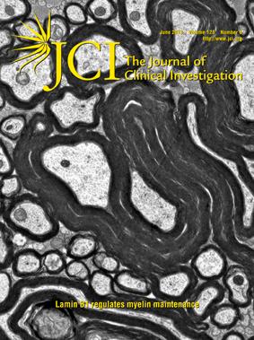 A hasnyálmirigyrák gyakorisága, okai és kezelési lehetőségei | PHARMINDEX Online