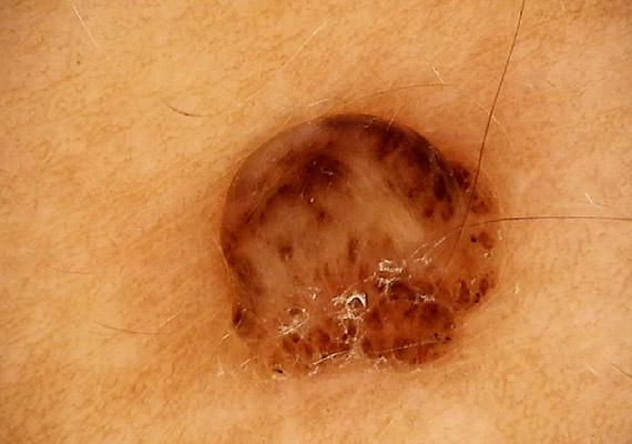 veszélyes szemölcsök paraziták craiova