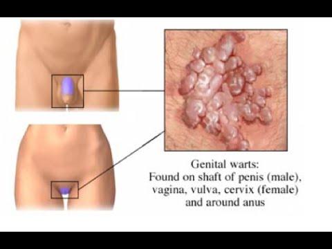 Condyloma (HPV) pénisz diagnosztikája és kezelése-STD szűrés