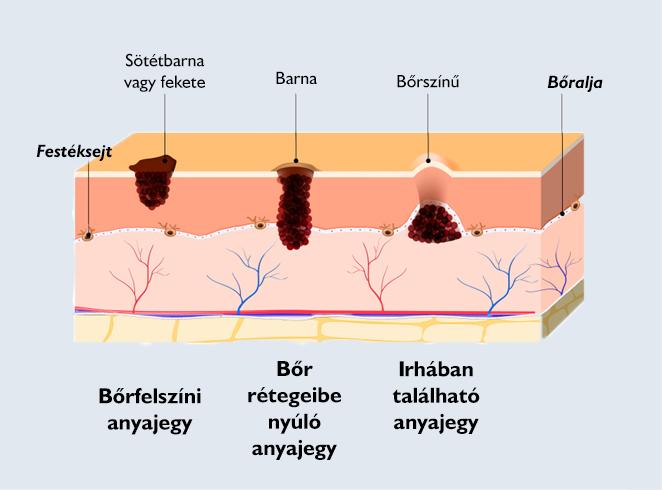 A daganatok rádióhullám eltávolítása: hogyan és mi történik