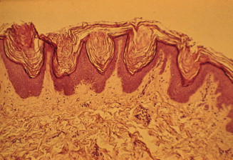 papillomatosis kor hpv vizelet tünetei