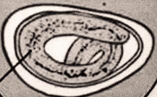 Enterobiasis klinikai iránymutatások