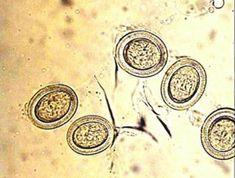 az enterobiosis ragaszkodik
