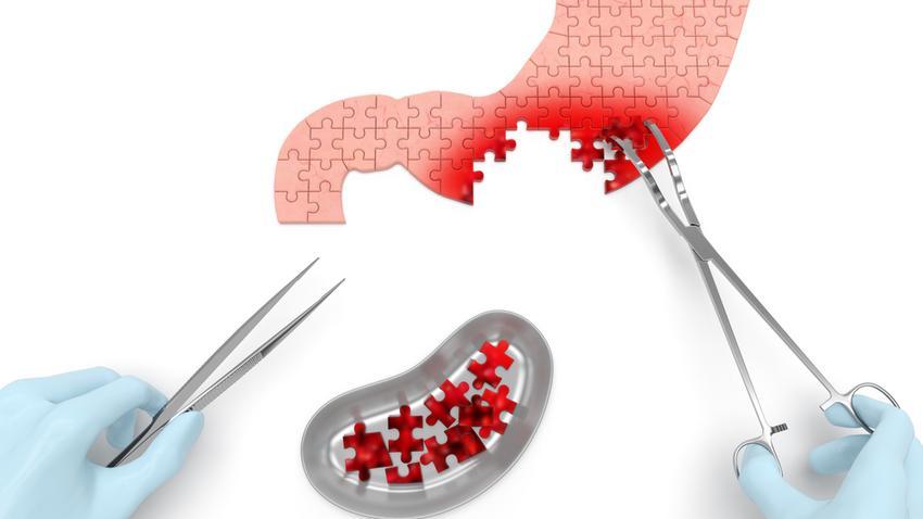 mely orvos kezeli a nők papillómáit hpv pozitív csoport p3