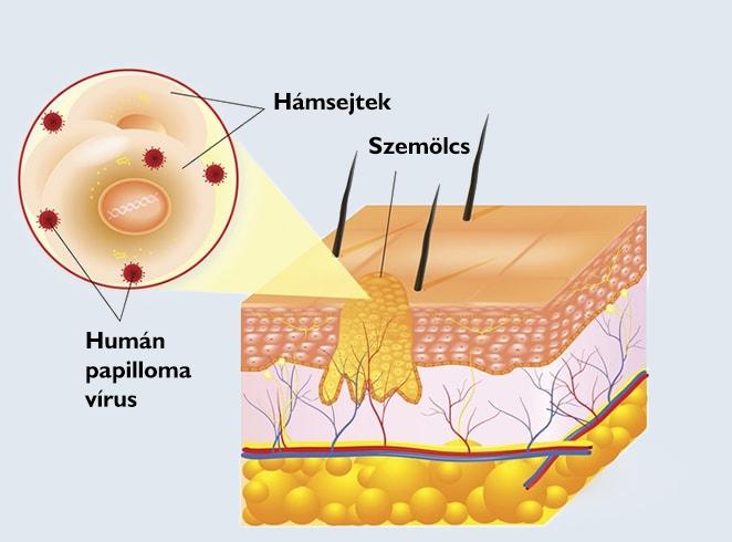 Szimpatika – Makacs szemölcsök és gyógymódjaik