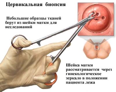 emberi papillomavírus vakcina halála