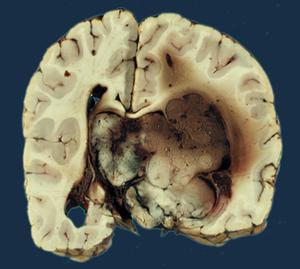 choroid plexus papilloma icd 10