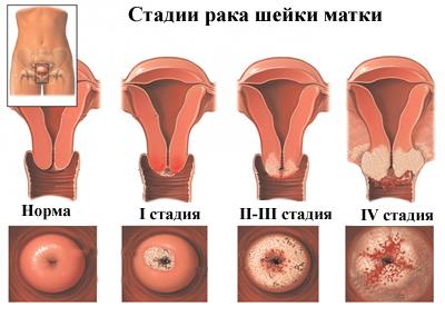 visszatérő papilloma vírus