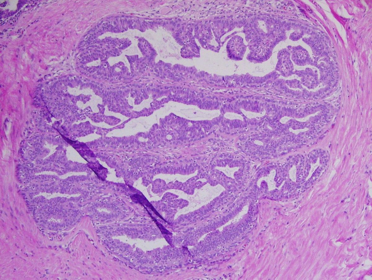 enterobius vermicularis fiziológia szemölcsök, hogyan ne fertőzze meg a partnert