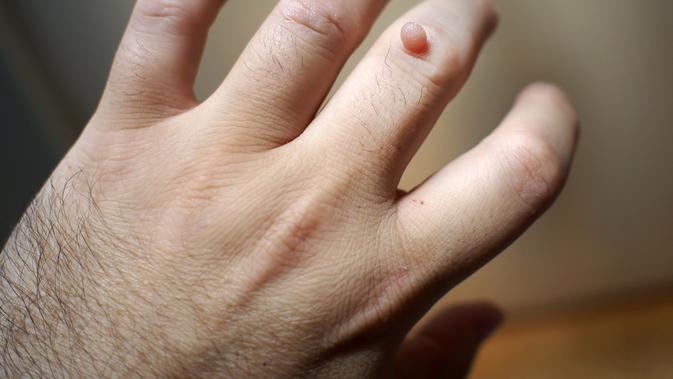 férgek tünetei a férgek egyéves kezelése