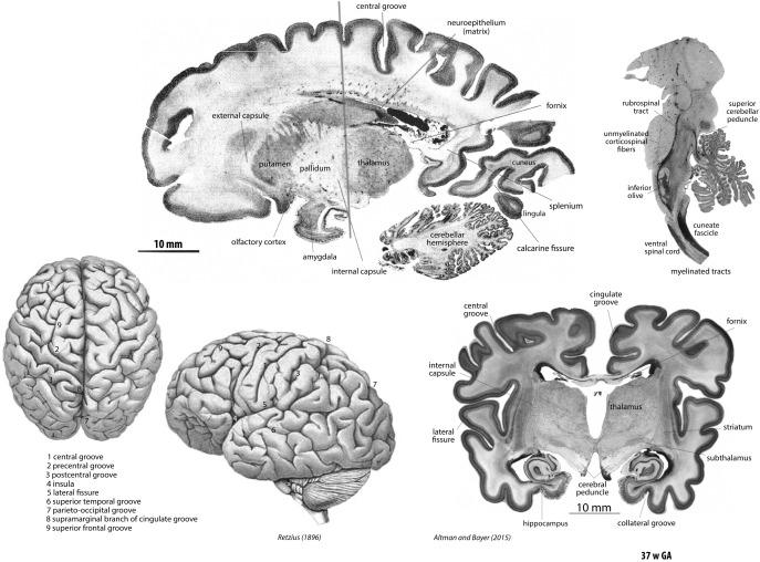 papillomavírus hím amygdala