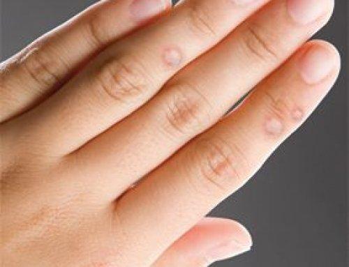 enterobius vermicularis kezelés dózisa férgek kezelésének típusa és típusa