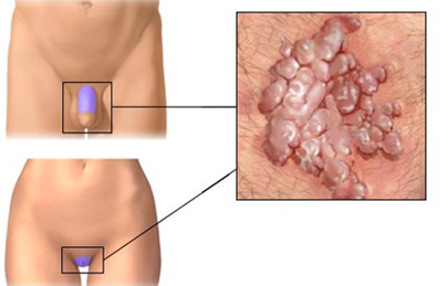 a genitális szemölcs tüneteinek kezelése fehér papillómák az arcon