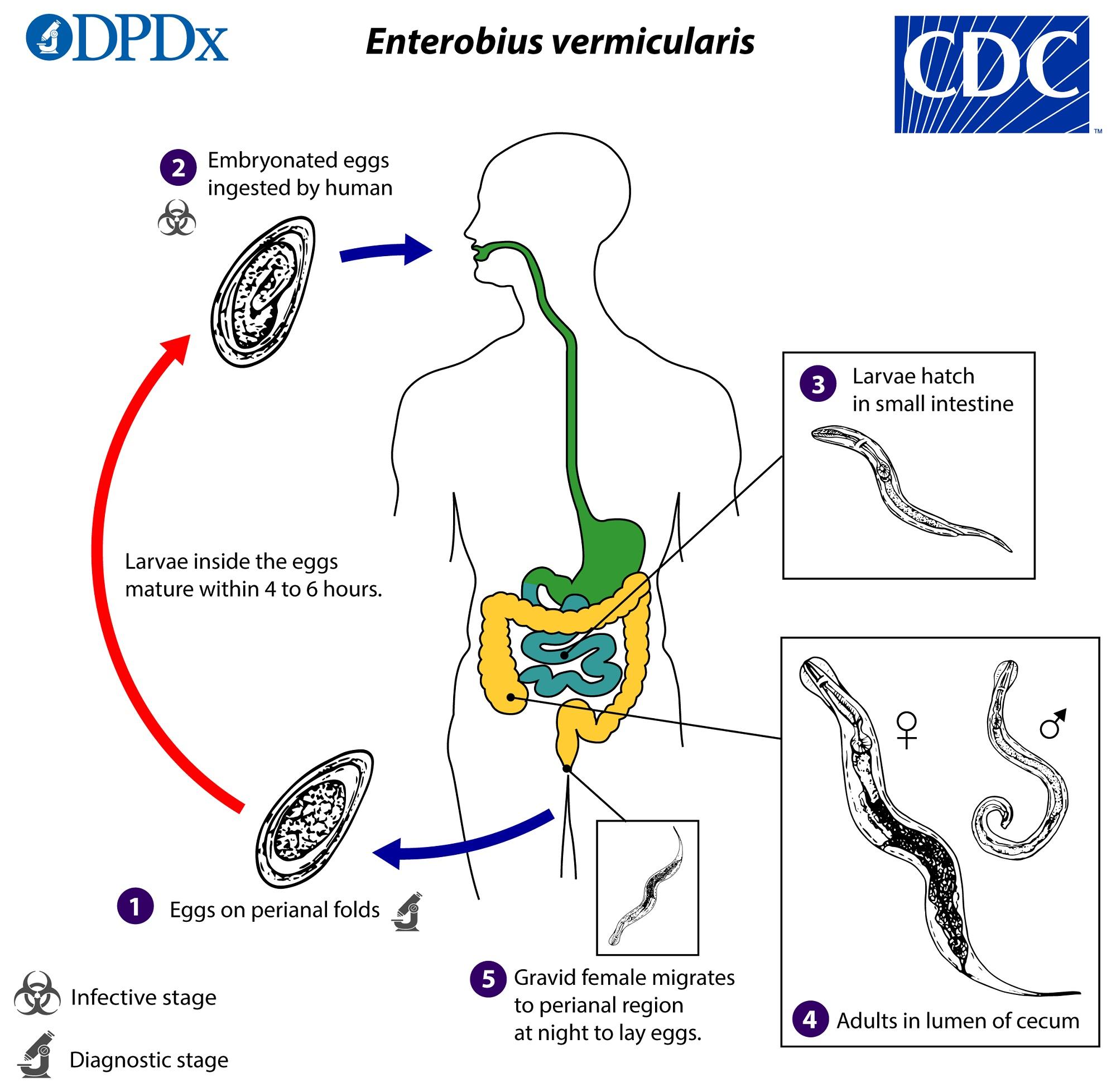 Enterobiosis pozitív mit kell tenni, Az enterobiasis okai