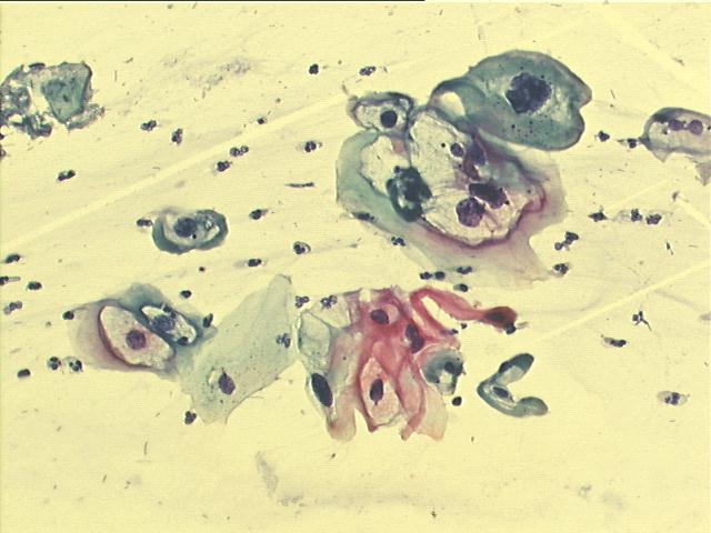 giardia kakil a gyermekeknél
