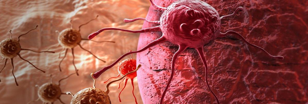 3 hónapot jósolt az orvosa – Így gyógyult meg áttétes rákbetegségéből