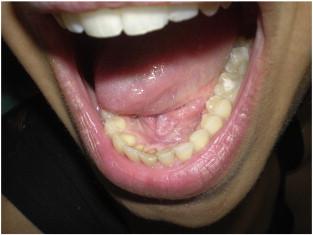 papillomavírus uvula