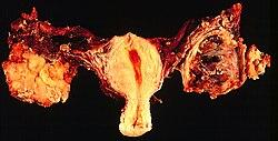 endometrium petefészekrák