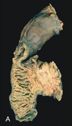 endokrin rák ritka