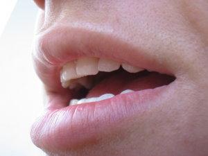 emberi papillomavírus száj- és torokrák