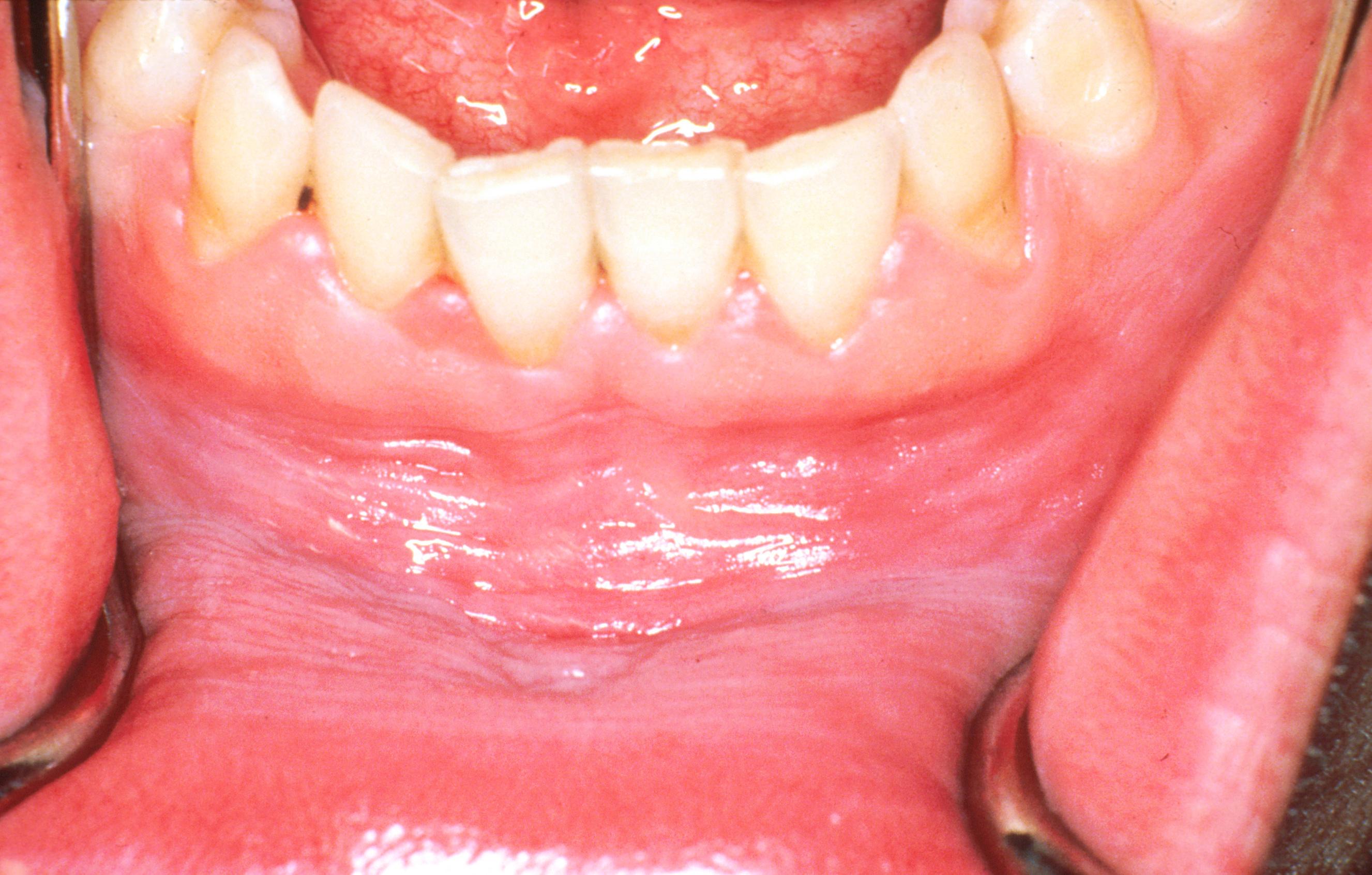 parazita kifejezések a férgek tünetei és kezelése felnőtteknél