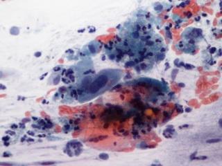 Shiitake gombával a HPV ellen