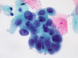 rákos sejtek hpv-ből