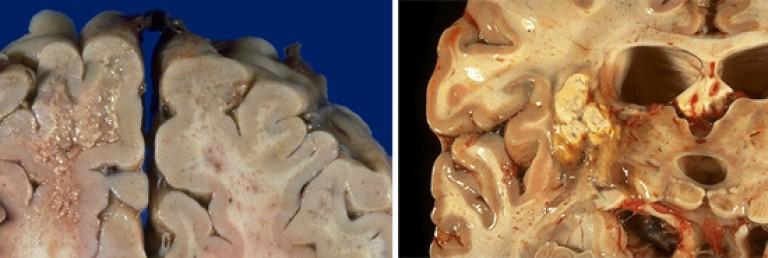 Hogyan lehet kezelni a helmintikus fertőzéseket felnőtteknél - Féreg kutatas