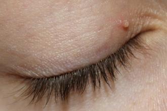 bőrrák a szolárium miatt nem humán papillomavírus