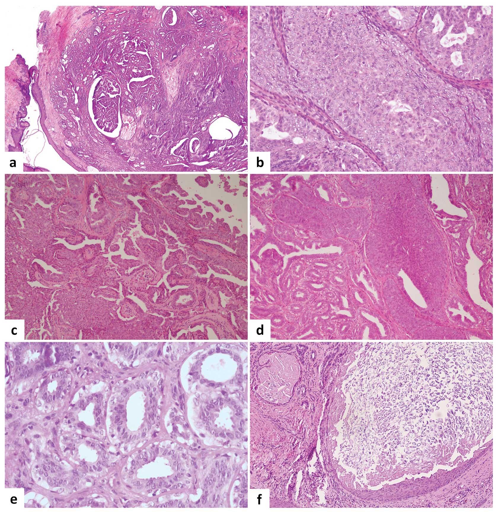 panacur giardia féregférgek kezelése