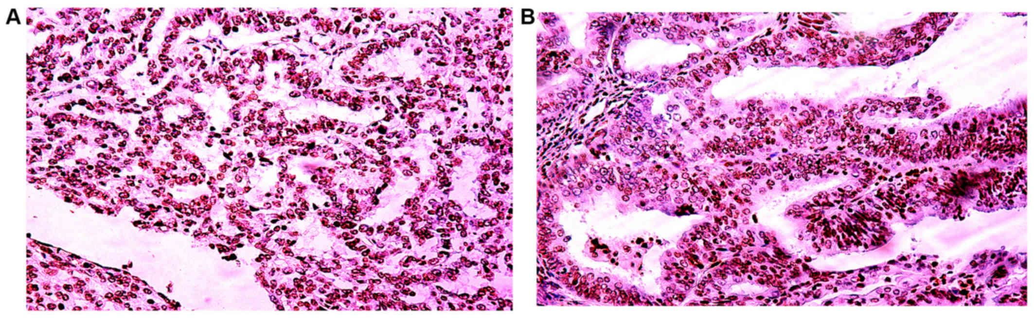 endometrium rák peritonealis citológia)