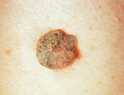 eróziós kezelés és a nemi szemölcsök eltávolítása