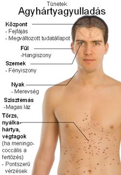 helmint fertőzés előfordulása szemölcsök immunstimulánsai