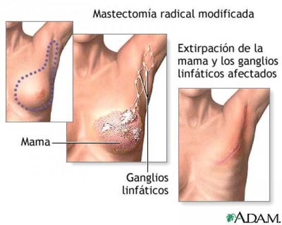 Mastectomia után javasolt az emlőrekonstrukció