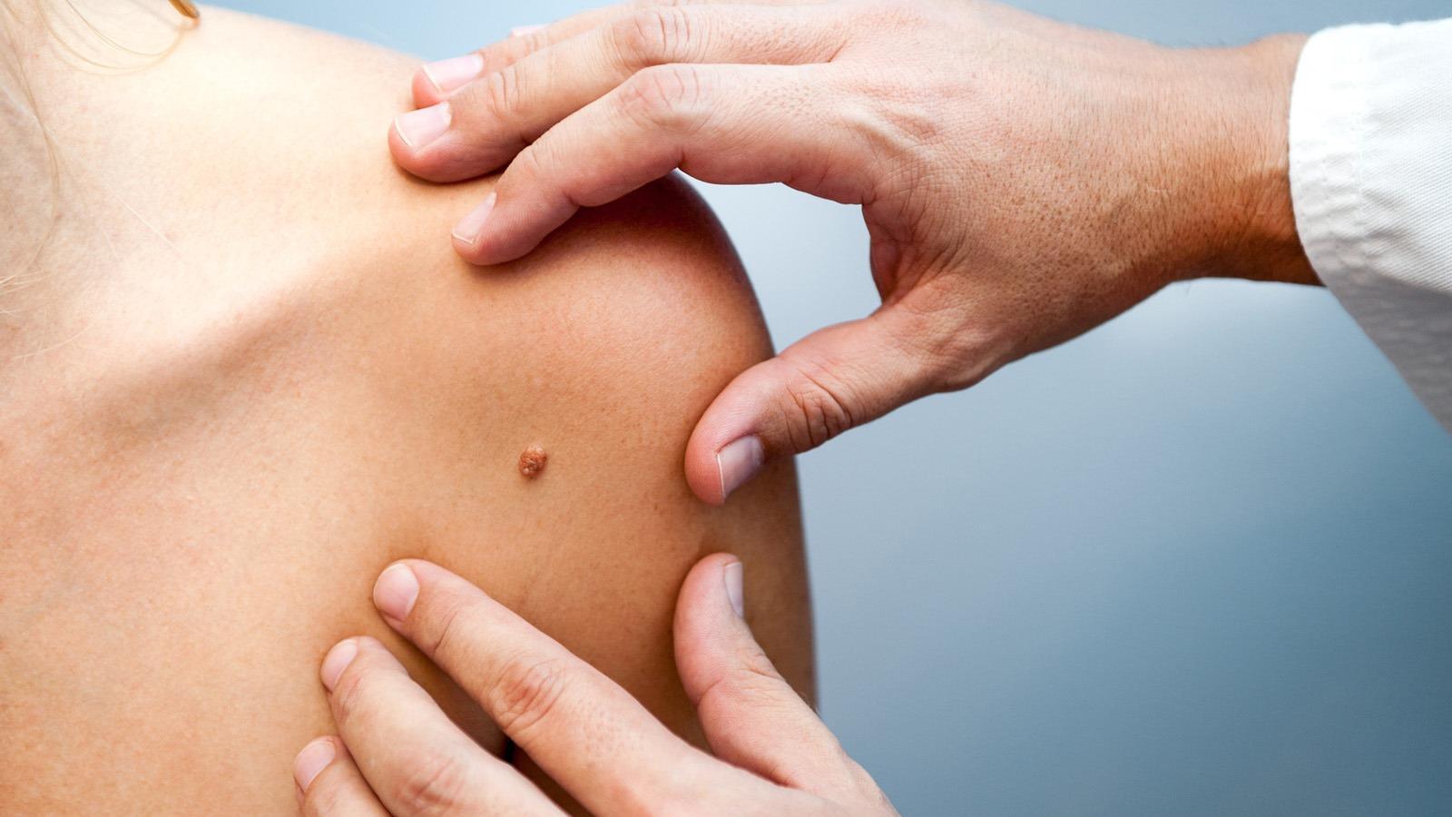 A bőrgyógyász legjobb tanácsai szemölcs ellen - Dermatica