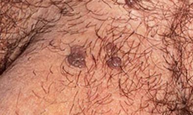 Helminthiasis tünetei és kezelése