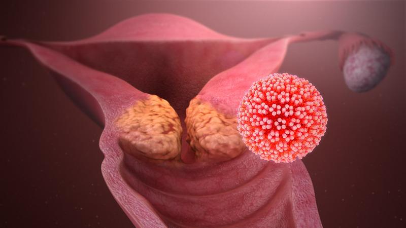 HPV humán papillómák férgek és féregtermékek
