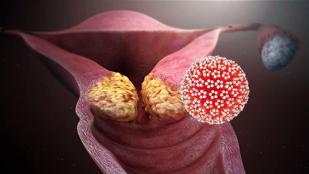 hpv vírus az emberi testben