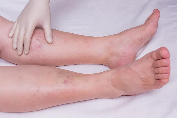 lábfájdalom a lábujjak között paraziták tisztítására készített
