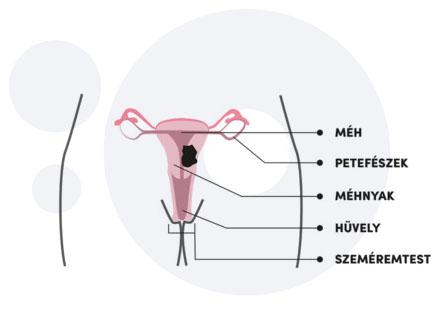 Papillómák a mell alatt - A HPV hatékony kezelése
