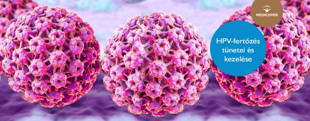 nemi úton terjedő papillomavírus-fertőzés