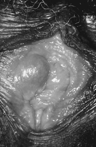 nőhet a vestibularis papillomatosis csiga által terjesztett paraziták