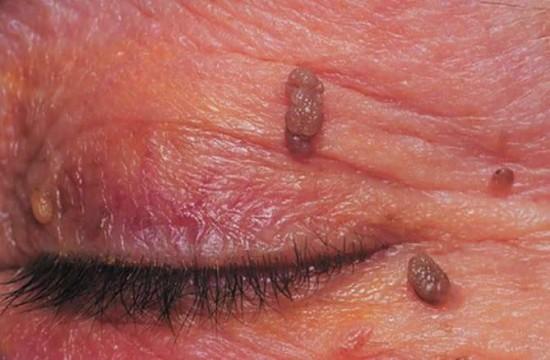 Papilloma a szemhéjon - Lipoma