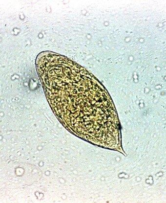 enterobius vermicularis vakbélgyulladás férfiak szemölcsök elleni gyógyszerei
